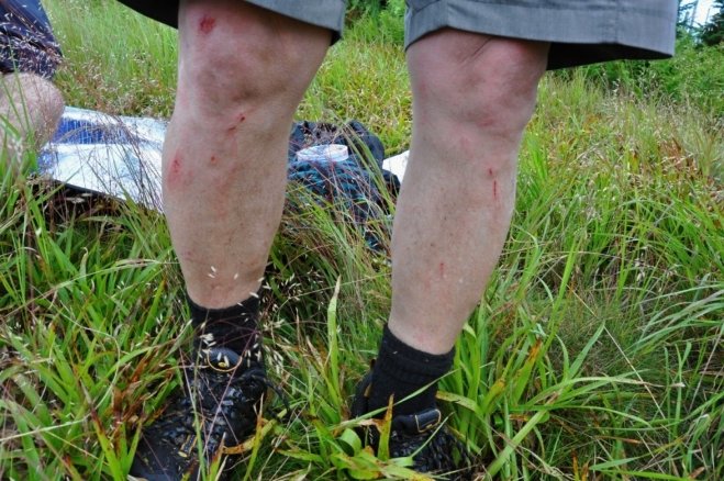 Hádejte čí pochroumané a zrasované nohy tohle asi jsou. Můžete 3x!